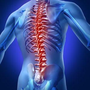 3D image of spine